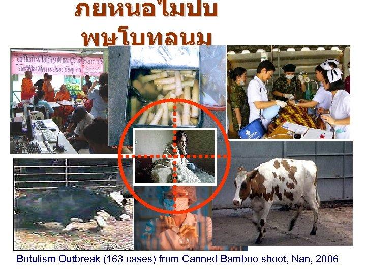 ภยหนอไมปบ พษโบทลนม Botulism Outbreak (163 cases) from Canned Bamboo shoot, Nan, 2006