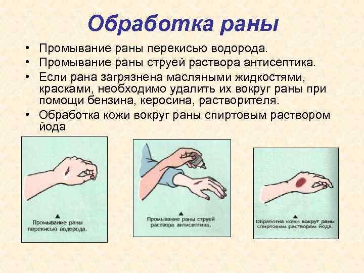 Обработка раны • Промывание раны перекисью водорода. • Промывание раны струей раствора антисептика. •