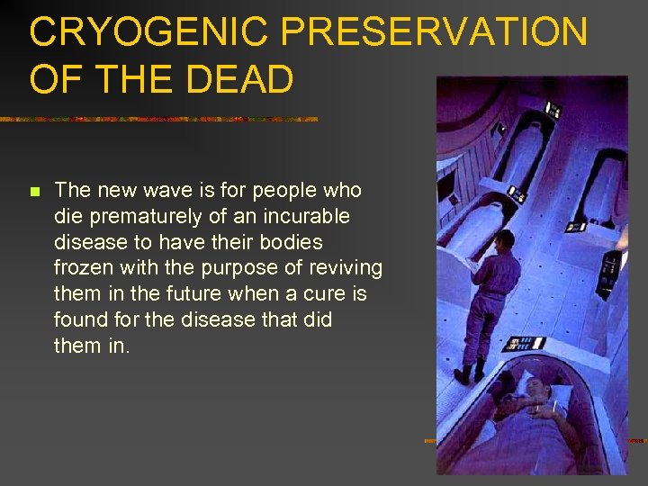 CRYOGENIC PRESERVATION OF THE DEAD n The new wave is for people who die