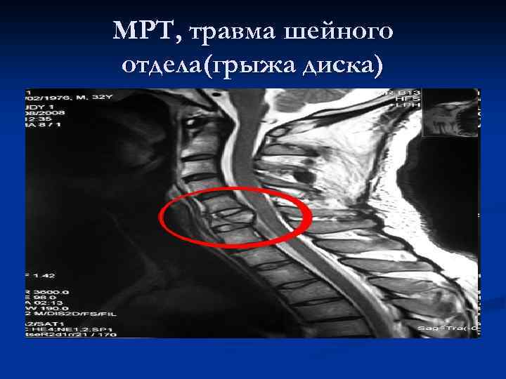 МРТ, травма шейного отдела(грыжа диска)