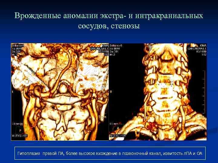 Врожденные аномалии экстра- и интракраниальных сосудов, стенозы Гипоплазия правой ПА, более высокое вхождение в