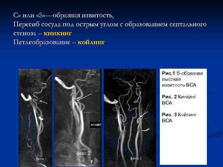 С» или «S» —образная извитость, Перегиб сосуда под острым углом с образованием септального стеноза
