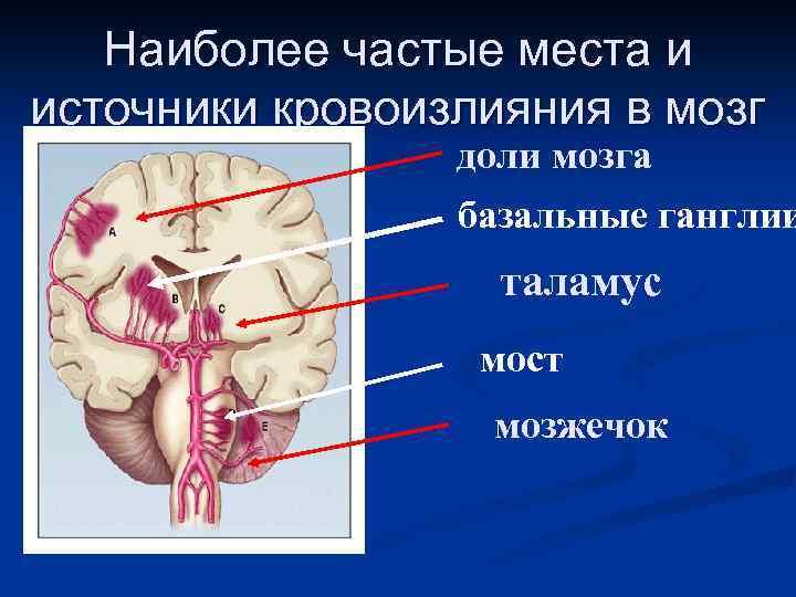Наиболее частые места и источники кровоизлияния в мозг доли мозга базальные ганглии таламус мост