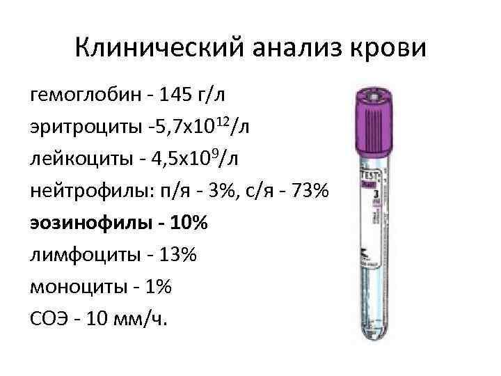 Клинический анализ крови гемоглобин - 145 г/л эритроциты -5, 7 х1012/л лейкоциты - 4,