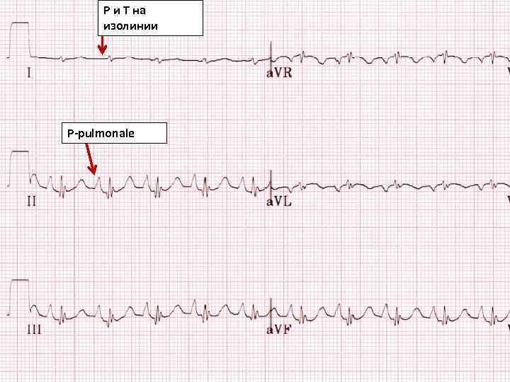 P и Т на изолинии P-pulmonale