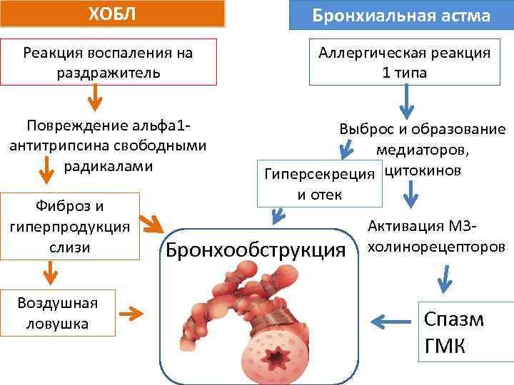 ХОБЛ Бронхиальная астма Реакция воспаления на раздражитель Аллергическая реакция 1 типа Повреждение альфа 1