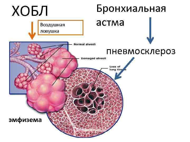ХОБЛ Воздушная ловушка Бронхиальная астма пневмосклероз эмфизема