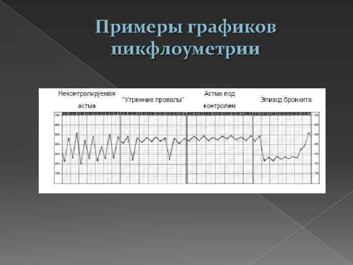Примеры графиков пикфлоуметрии