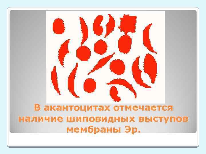 В акантоцитах отмечается наличие шиповидных выступов мембраны Эр.
