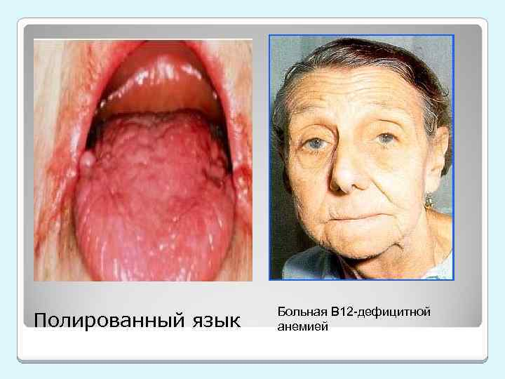 Полированный язык Больная В 12 -дефицитной анемией