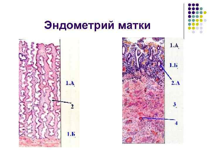 Эндометрий матки