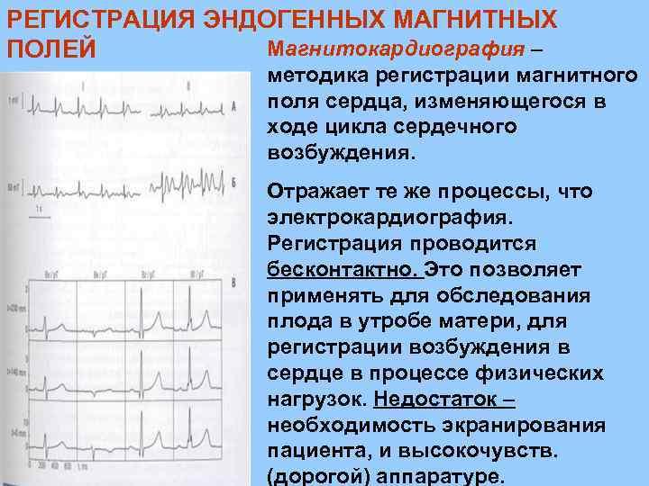 РЕГИСТРАЦИЯ ЭНДОГЕННЫХ МАГНИТНЫХ Магнитокардиография – ПОЛЕЙ методика регистрации магнитного поля сердца, изменяющегося в ходе