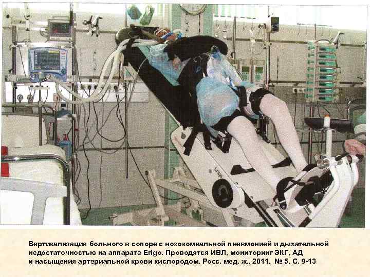 Вертикализация больного в сопоре с нозокомиальной пневмонией и дыхательной недостаточностью на аппарате Erigo. Проводятся