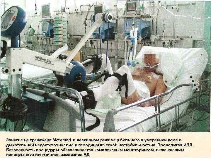 Занятие на тренажере Motomed в пассивном режиме у больного в умеренной коме с дыхательной