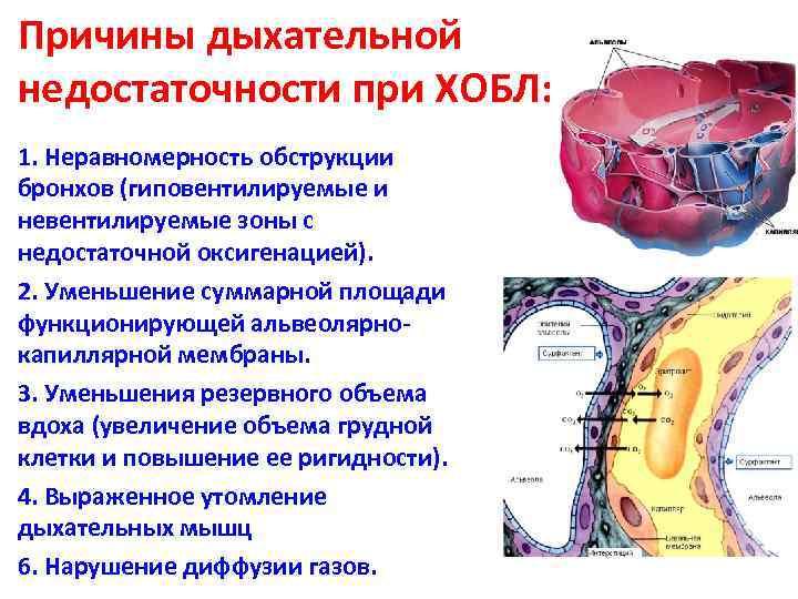 Причины дыхательной недостаточности при ХОБЛ: 1. Неравномерность обструкции бронхов (гиповентилируемые и невентилируемые зоны с