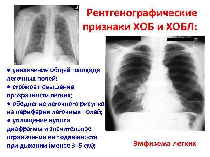 Рентгенографические признаки ХОБЛ: ● увеличение общей площади легочных полей; ● стойкое повышение прозрачности легких;
