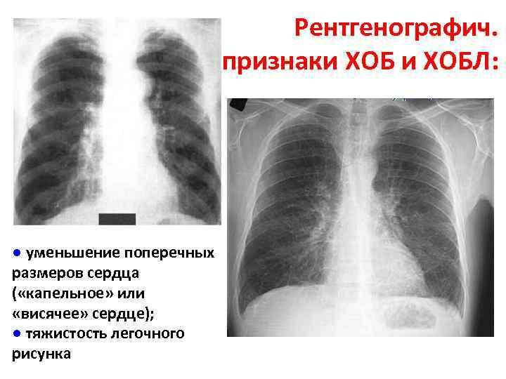 Рентгенографич. признаки ХОБЛ: ● уменьшение поперечных размеров сердца ( «капельное» или «висячее» сердце); ●