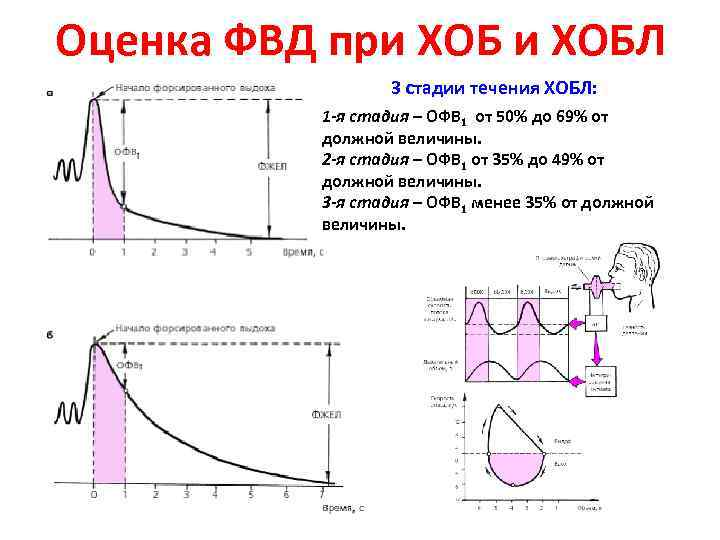 Оценка ФВД при ХОБЛ 3 стадии течения ХОБЛ: 1 -я стадия – ОФВ 1