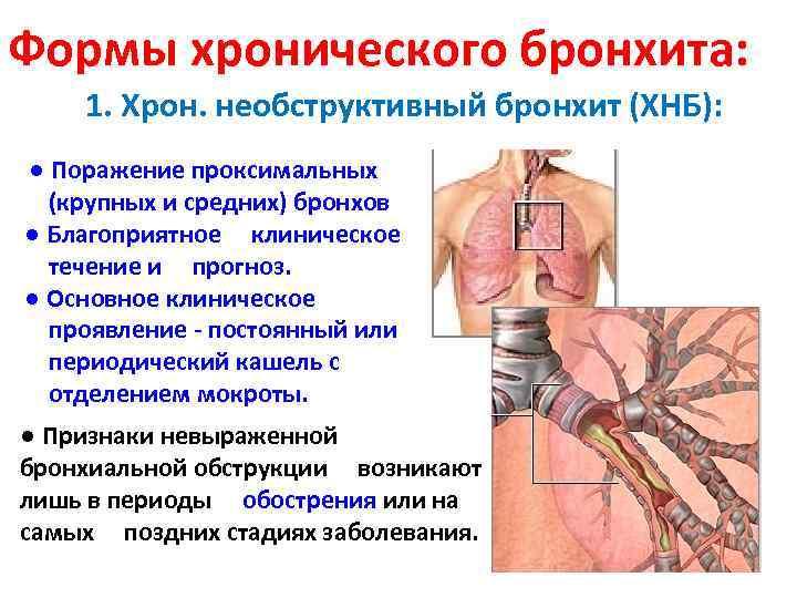 Формы хронического бронхита: 1. Хрон. необструктивный бронхит (ХНБ): ● Поражение проксимальных (крупных и средних)