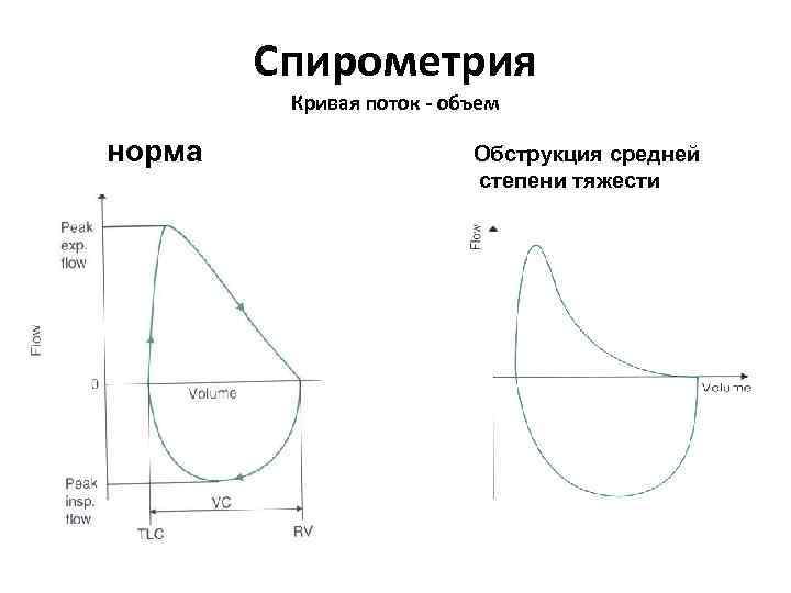 Спирометрия Кривая поток - объем норма Обструкция средней степени тяжести