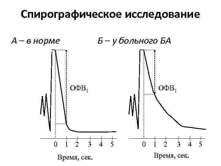 Спирографическое исследование А – в норме Б – у больного БА ОФВ 1 0