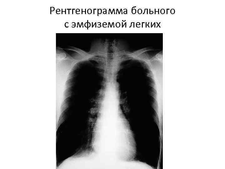 Рентгенограмма больного с эмфиземой легких