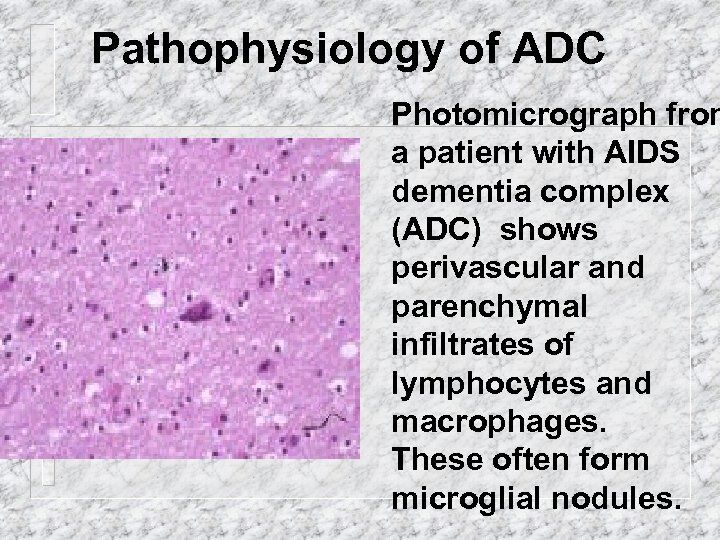 Pathophysiology of ADC Photomicrograph from a patient with AIDS dementia complex (ADC) shows perivascular