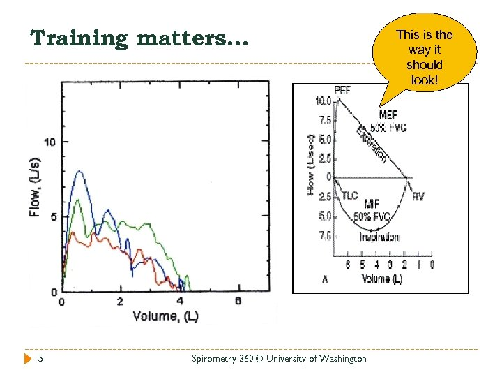 Training matters… 5 Spirometry 360 © University of Washington This is the way it