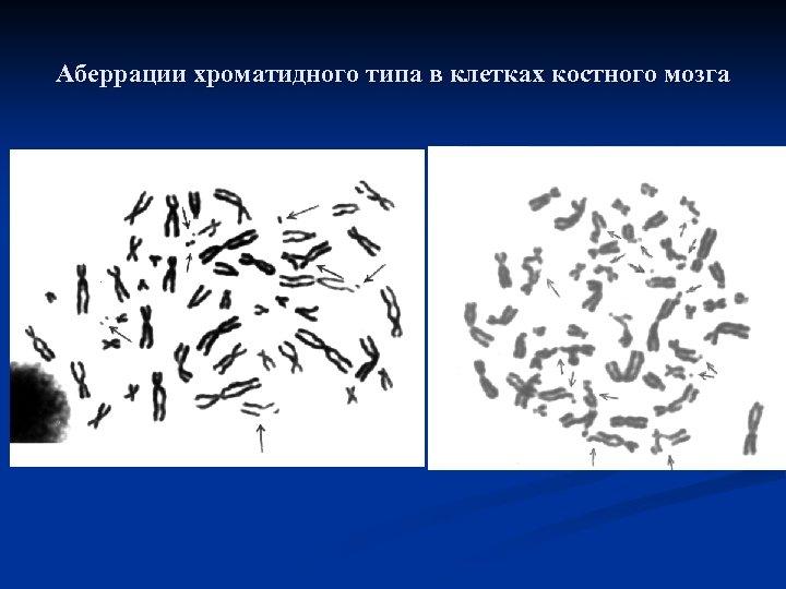 Аберрации хроматидного типа в клетках костного мозга