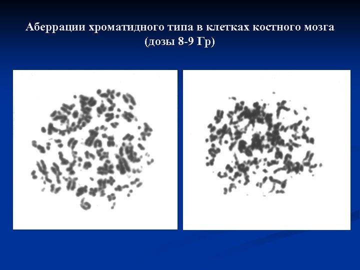 Аберрации хроматидного типа в клетках костного мозга (дозы 8 -9 Гр)