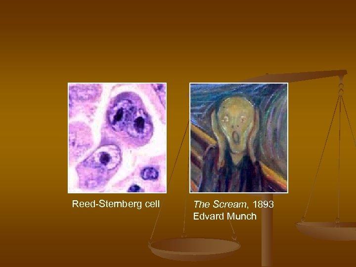 Reed-Sternberg cell The Scream, 1893 Edvard Munch
