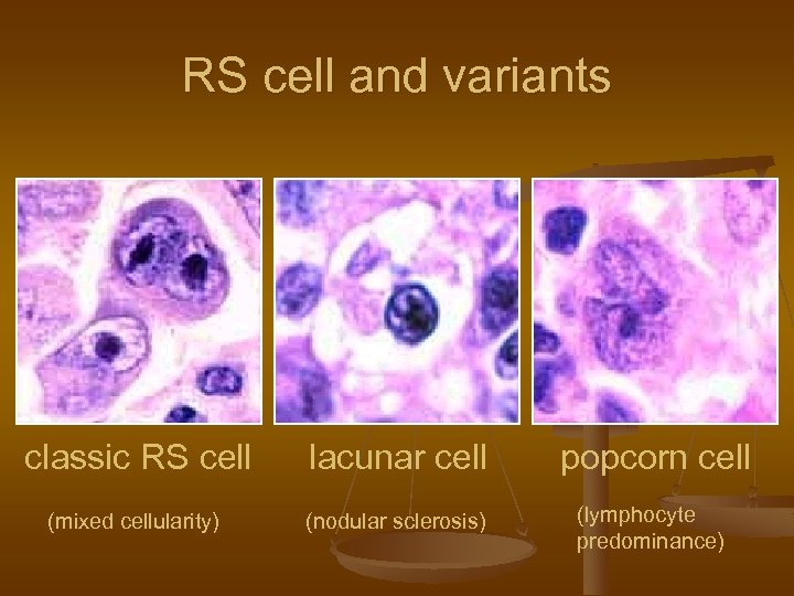 RS cell and variants classic RS cell lacunar cell popcorn cell (mixed cellularity) (nodular