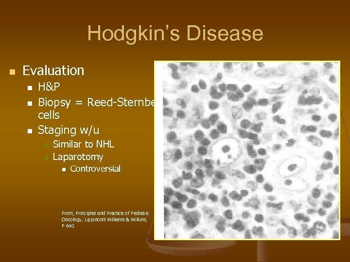 Hodgkin's Disease n Evaluation n H&P Biopsy = Reed-Sternberg cells Staging w/u n n