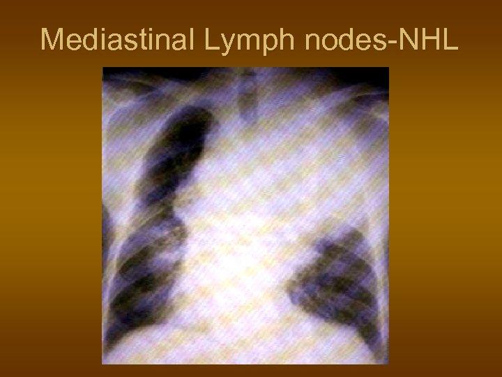 Mediastinal Lymph nodes-NHL