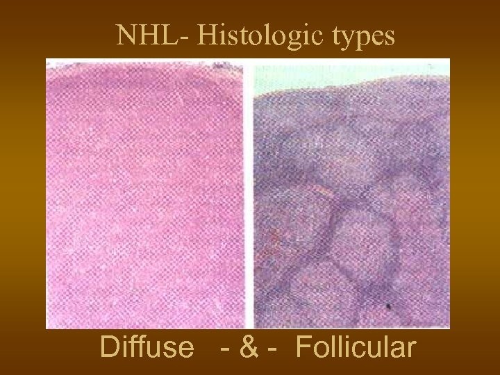 NHL- Histologic types Diffuse - & - Follicular