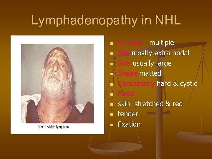 Lymphadenopathy in NHL n n n n n Number multiple Site mostly extra nodal