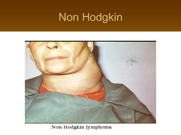 Non Hodgkin