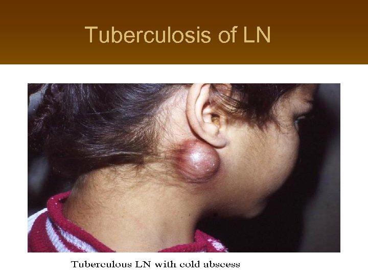 Tuberculosis of LN