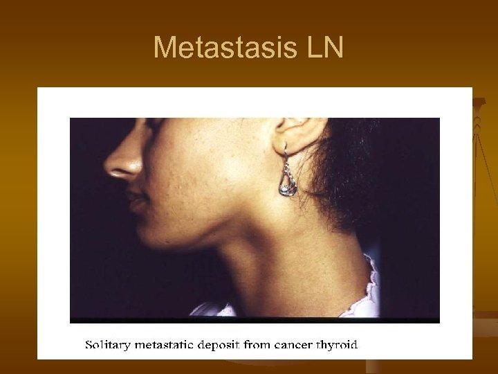 Metastasis LN