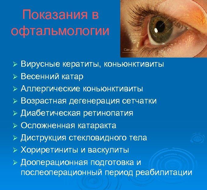 Показания в офтальмологии Вирусные кератиты, коньюнктивиты Ø Весенний катар Ø Аллергические коньюнктивиты Ø Возрастная