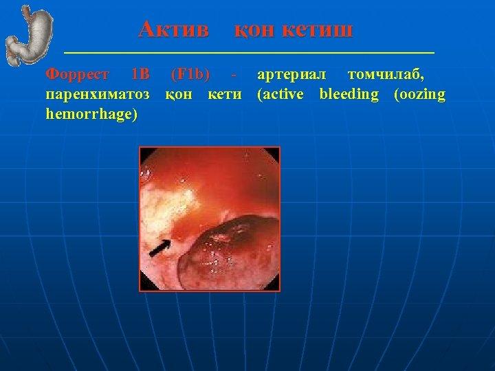 Актив қон кетиш Форрест 1 В (F 1 b) - артериал томчилаб, паренхиматоз қон