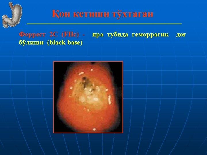 Қон кетиши тўхтаган Форрест 2 С (FIIс) бўлиши (black base) яра тубида геморрагик доғ