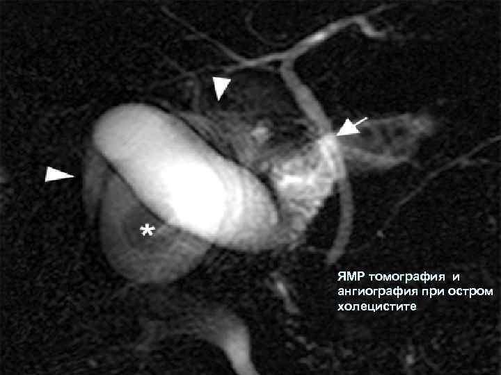 ЯМР томография и ангиография при остром холецистите