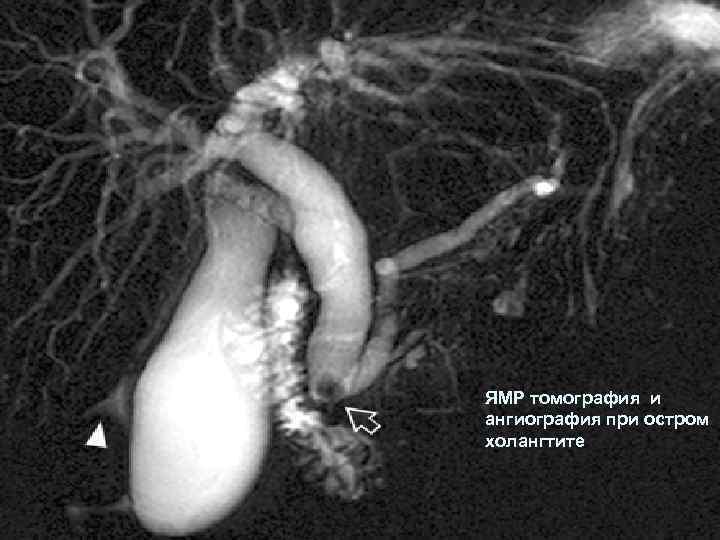 ЯМР томография и ангиография при остром холангтите