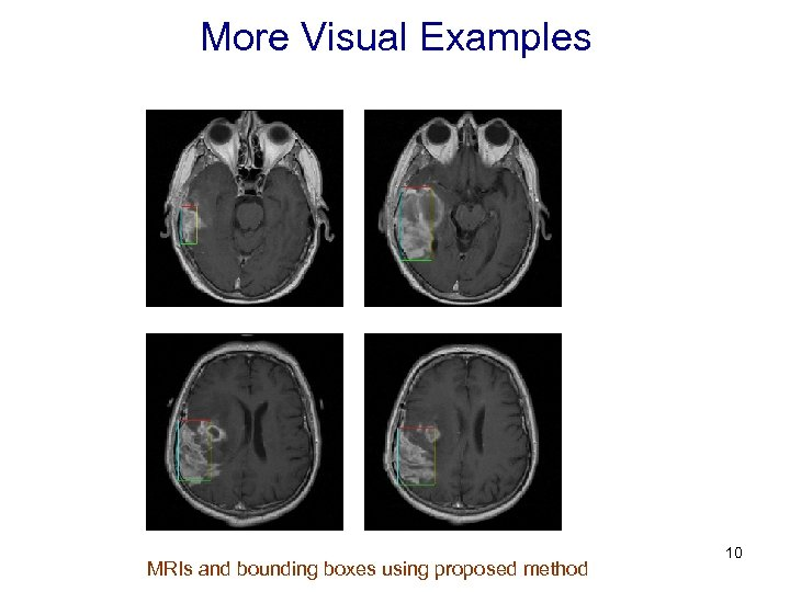 More Visual Examples MRIs and bounding boxes using proposed method 10