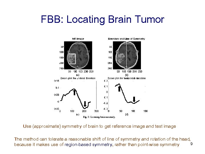 FBB: Locating Brain Tumor Fig. 2: Locating brain anomaly. Use (approximate) symmetry of brain