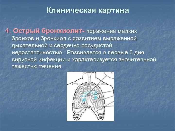 Клиническая картина 4. Острый бронхиолит- поражение мелких бронхов и бронхиол с развитием выраженной дыхательной