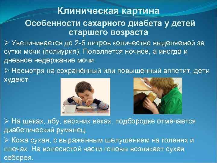 Причины сахарного диабета у детей дошкольного возраста