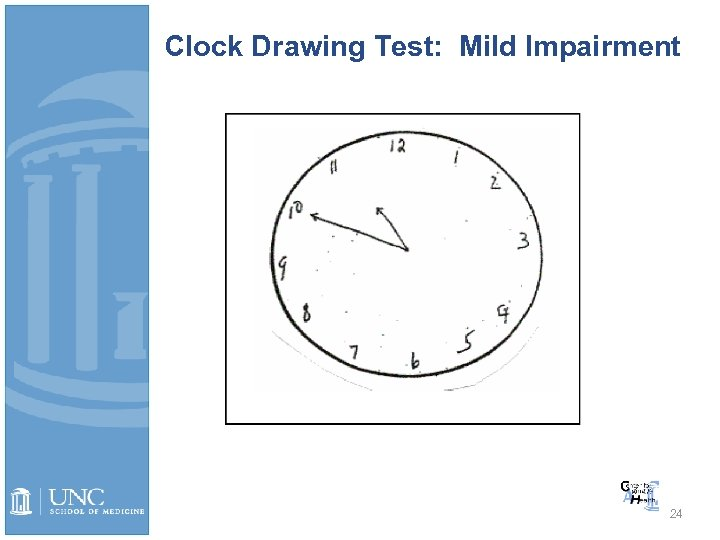Clock Drawing Test: Mild Impairment 24