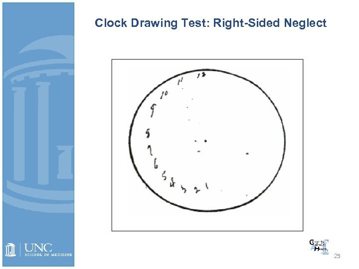 Clock Drawing Test: Right-Sided Neglect 25